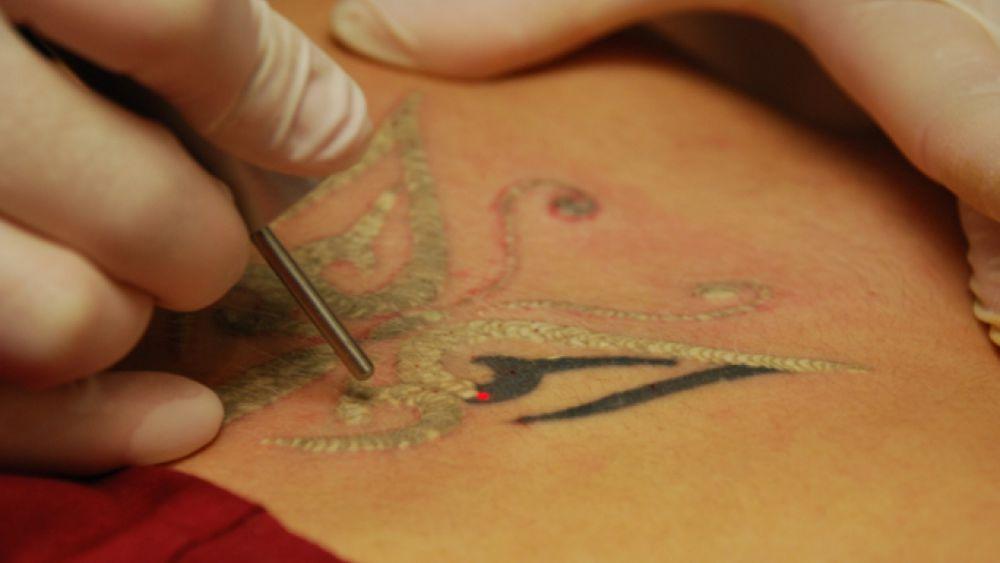 Vietata la produzione della crema che cancella i tatuaggi for Tattoo removal in louisiana